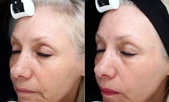 Mezoterapia laser – un nou concept de îngrijire a pielii, la THAIco SPA